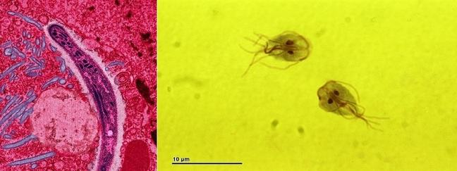 Microscopic photos of Plasmodium and Giardia