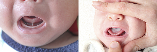 Two images show examples of oral thrush on the newborn tongue (pictured right) and ankyloglossia, also known as 'tongue tie' (pictured left)