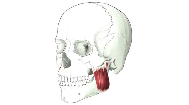 Masseter. A thick muscle that runs from the cheekbone to the lower jaw