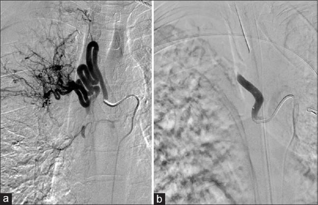 image of a Bronchial arteriogram which shows the right bronchial artery before and after embolization