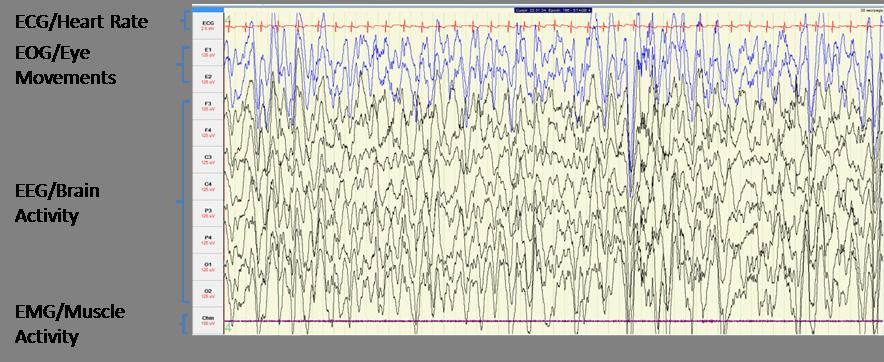 Genetic Analysis Of Histamine Signaling In Larval Zebrafish Sleep