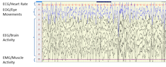 image of brain activity measurements during n3 sleep