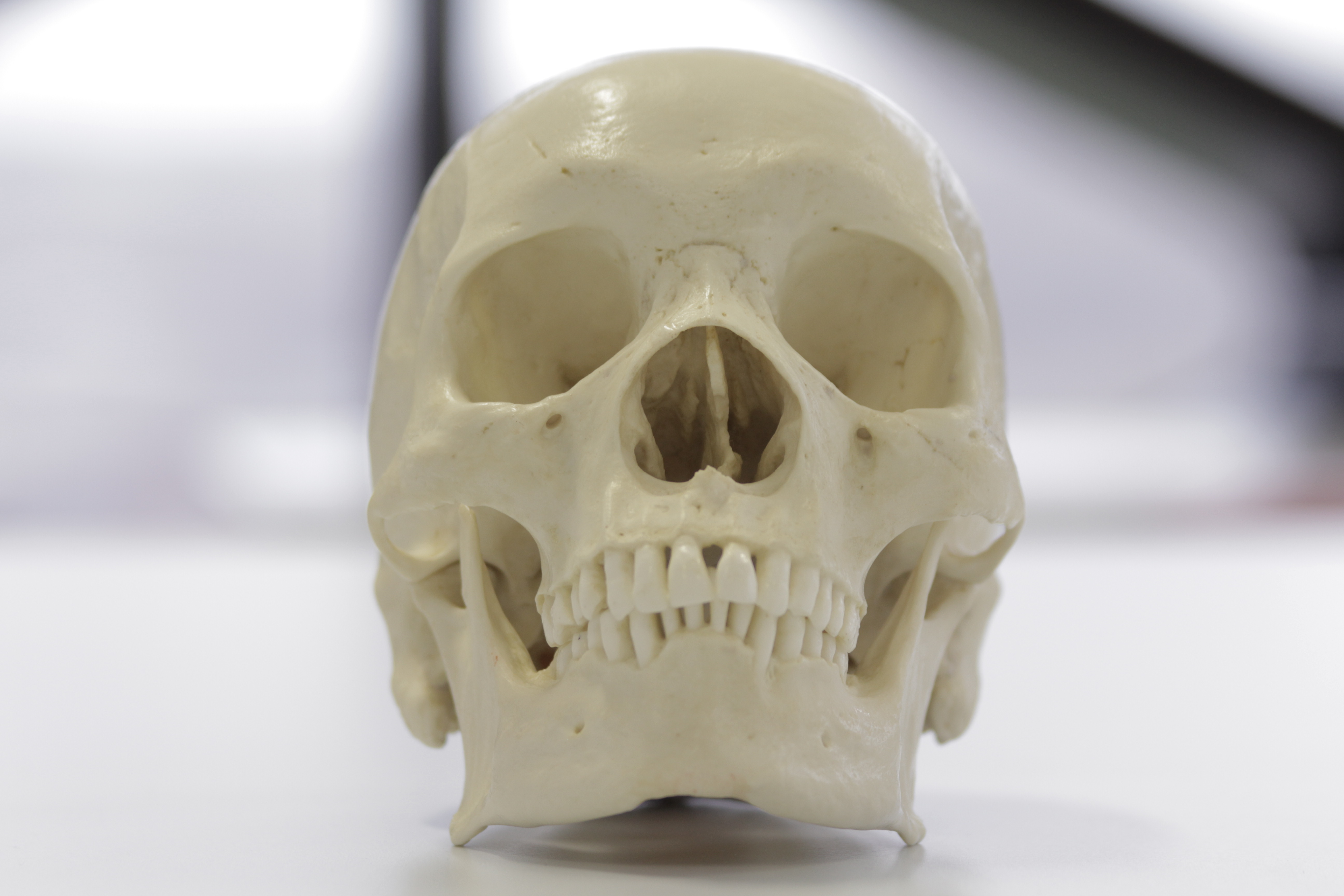 An African skull skull showing rectangular shaped orbits and wide nasal aperture