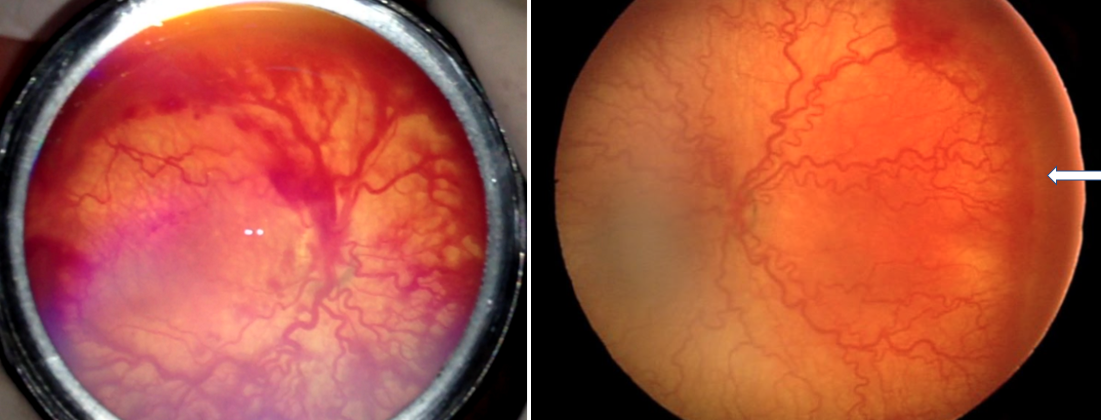 Two retinal photographs side by side illustrating the differences between APROP and Stage 3 ROP with plus disease as described above