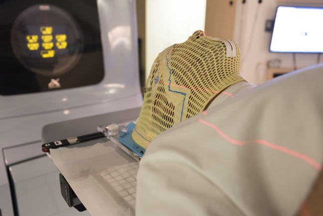 A patient wearing a mask undergoing radiation therapy