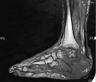 An x-ray of the foot.