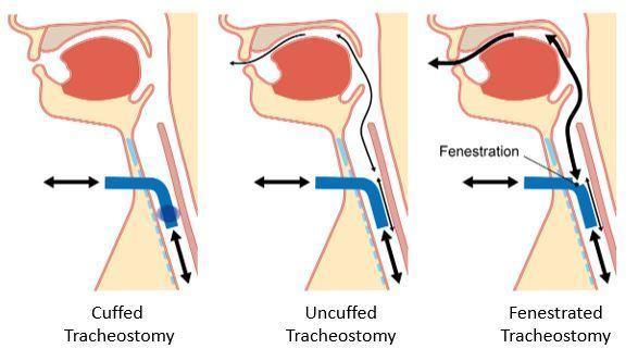 types of tracheostomy tubes