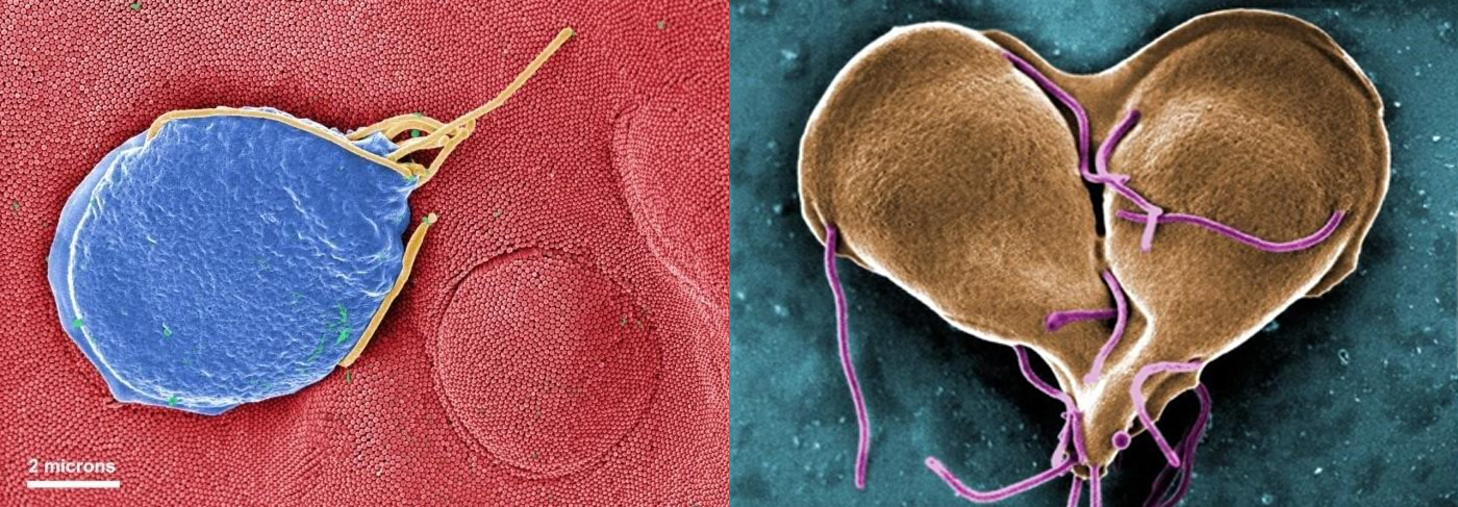 SEM image of Giardia lamblia shown as a single cell and then as a two cells joined