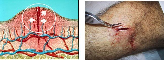 diagramatic representation of oedema and an image of oedema in a wound.