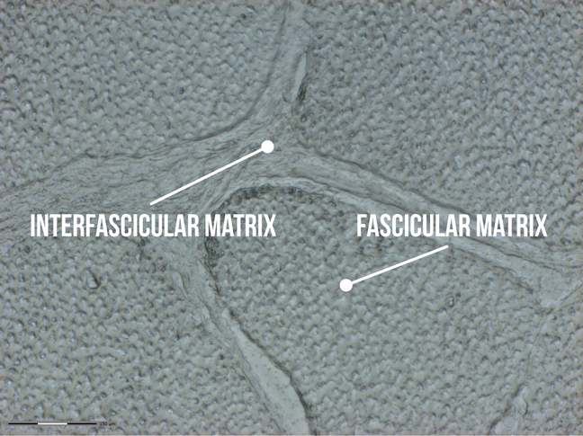 A microscopic image of horse tendon which shows the fascicular matrix (FM) and the interfascicular matrix