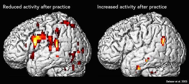 fMRI of participants who have practised a mathematical process. The left image shows highlights in many regions of the brain, including working memory networks. The right image shows fewer hotspots, with remaining hotspots at the back of the brain