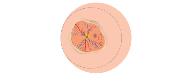 Retinal illustration showing the main features of Zone I, stage 1 or 2 without plus disease ROP