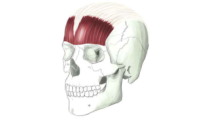 Occipitofrontalis. The large muscle of the forehead.