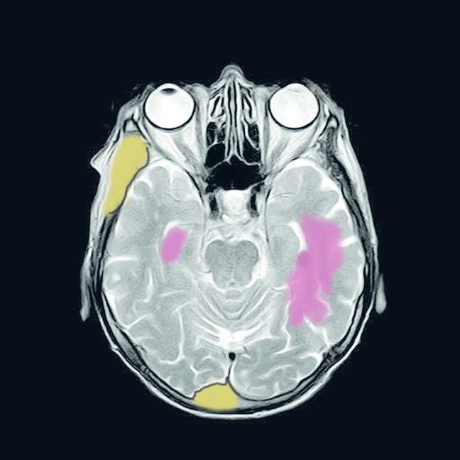 mri scan showing two tumour types