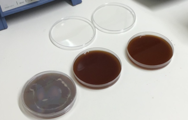agar jelly setting