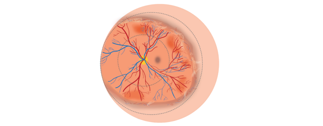 Retinal illustration showing the main features ofZone 2 Stage 3 without plus disease ROP