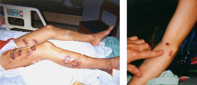 Left picture: Falun Gong practitioner with burns after being tortured by guards in a labor camp in the Boluo Area of China. Right picture: Skin marks after electrocution