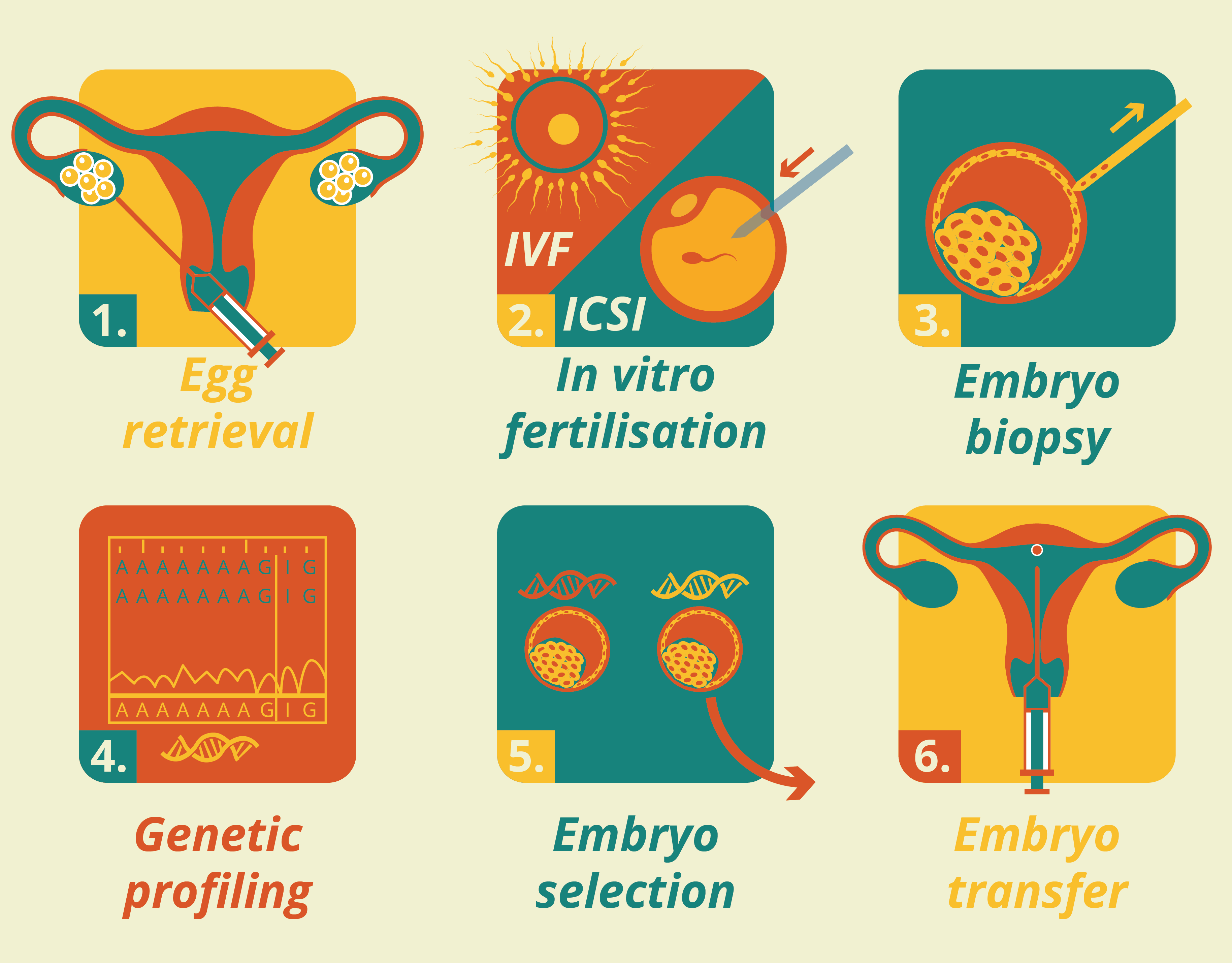 These are the key steps of PGD: 1. Egg retrieval 2. In vitro fertilisation 3. Embryo biopsy 4. Genetic profiling 5. Embryo selection 6. Embryo implantation