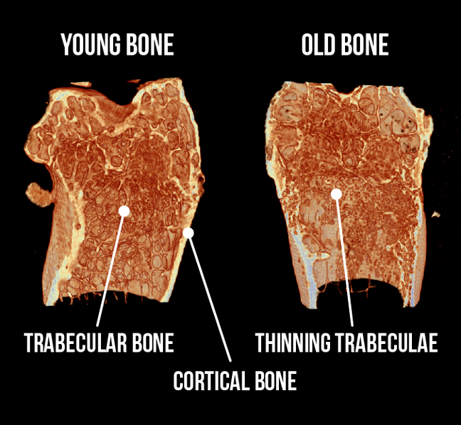 A cross section of a mouse bone. One image shows a young trabeculae, the other shows an old trabeculae