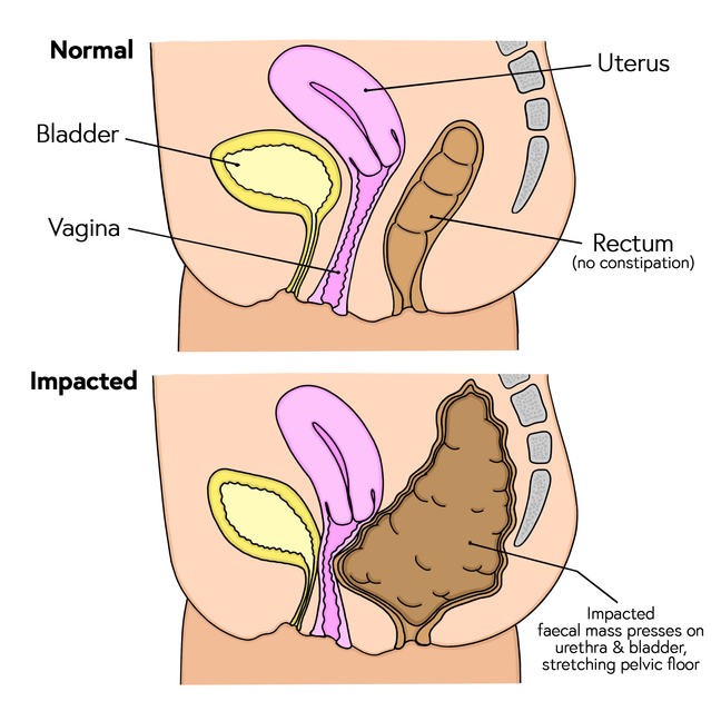 Comparison of normal bowel function with faecal impaction