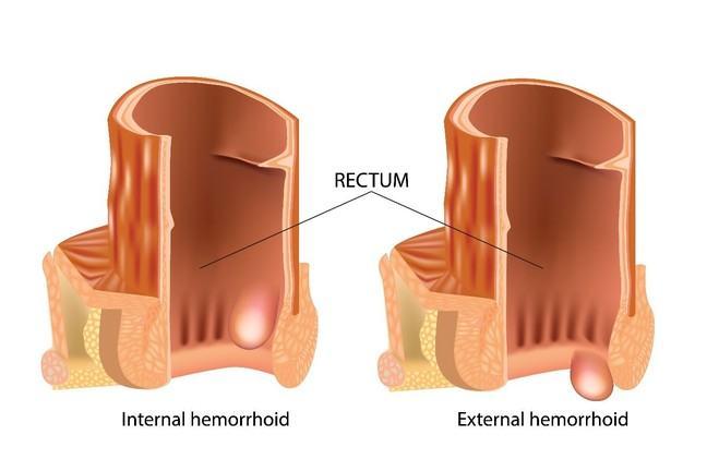 Haemorrhoids or piles
