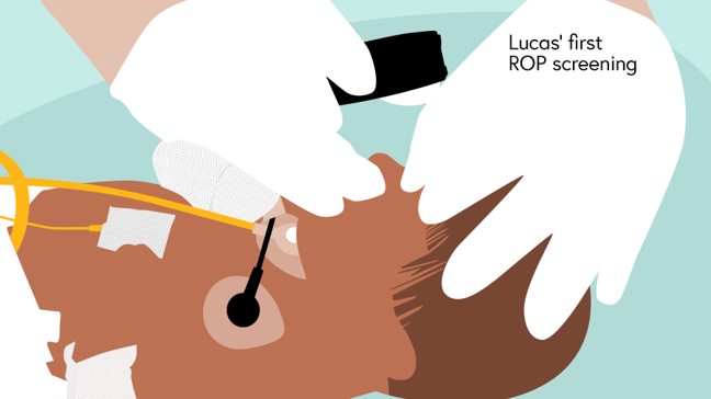 Illustration of Lucas' first screening showing the ophthalmologist holding an indirect ophthalmoscope lens close to his eye