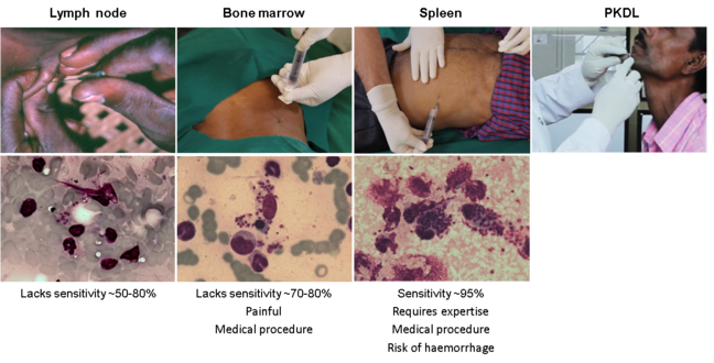 Panel of photos showing method of collection of biopsy samples from the spleen, bone marrow, lymph node or skin and the respective microscopic images of the samples stained with Giemsa for the identification of Leishmania amastigotes (LDUs).