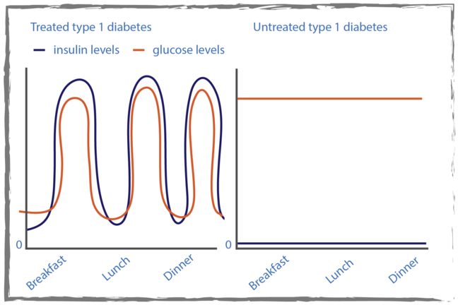 Graph of insulin and blood glucose levels during the day comparing treated type 1 diabetes where the insulin and glucose and insulin levels both dipping before breakfast, lunch and dinner and both rising after with untreated type 1 diabetes where the glucose level remains high and the insulin level stays at zero.