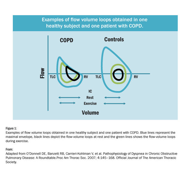 Chart comparing flow volume loops in lungs of healthy person and person with CPOD