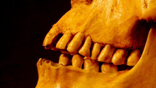 This is a replica of Mr. X's skull showing that the surface of the molars had been ground away by repetitive chewing