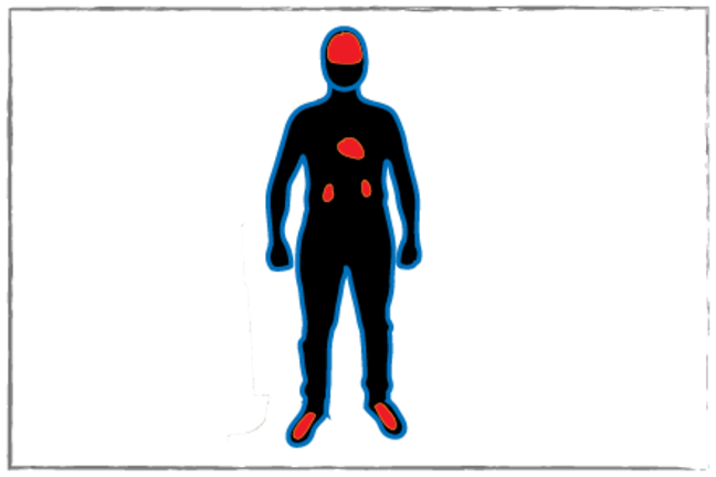 Picture of human body with key organs highlighted