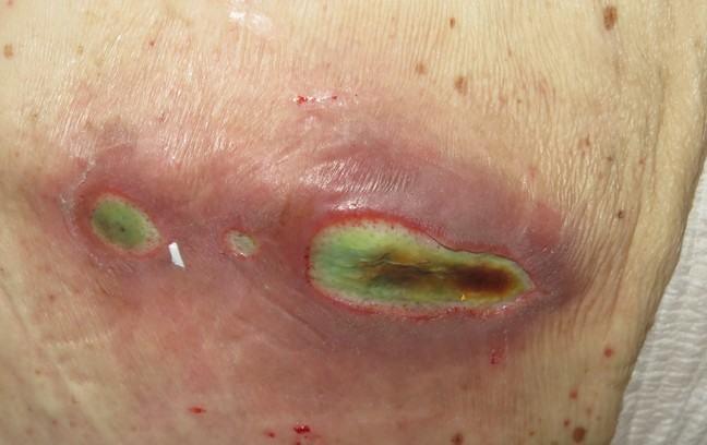 Pressure ulcer lumbar region displaying locoregional infection with Pseudomonas aeruginosa.