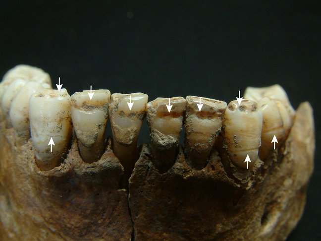 Enamel hypoplasia in the lower front teeth of Skeleton 23