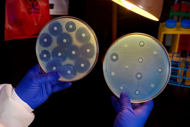 Hands with surgical gloves holding two petri dishes growing bacteria