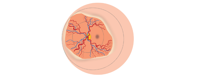 Illustration of the signs of plus disease in ROP as seen in the retina and described below