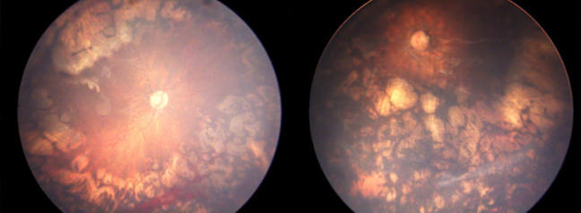 Retinal photographs of both eyes showing signs of laser treatment and disease regression