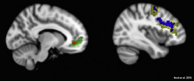 Two fMRI images. The first highlighting activity in the lower frontal lobe, the second highlighting activity in middle and top of the frontal lobe and parietal lobe.