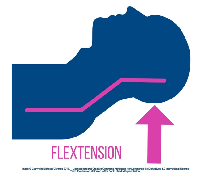 Flextension