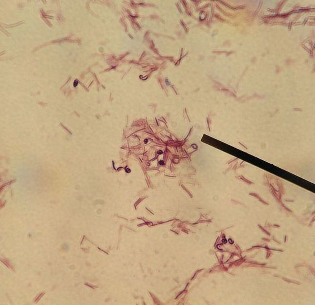 Microscope image of *Lactobacillus rhamnosus* - red bar shaped organisms against a cream background