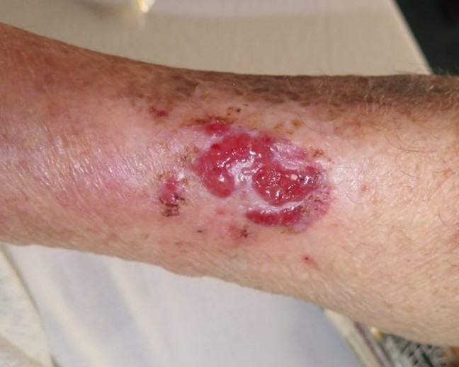 A follow up image of the wound, 2 months after initial consultation.