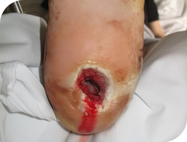 An image of the foot 1 week after starting NPWT treatment.