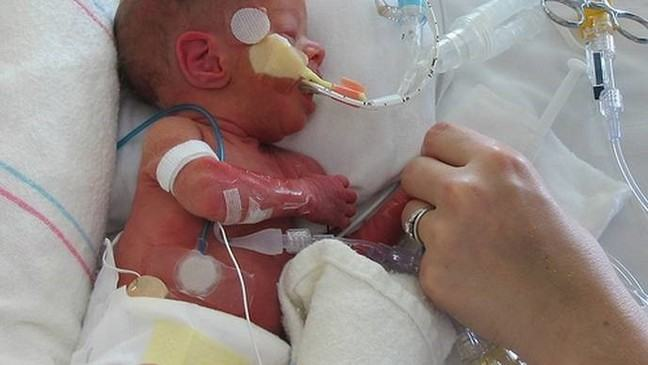 image of a neonate on a neonatal ICU, with multiple lines which can be a portal of entry for Candida