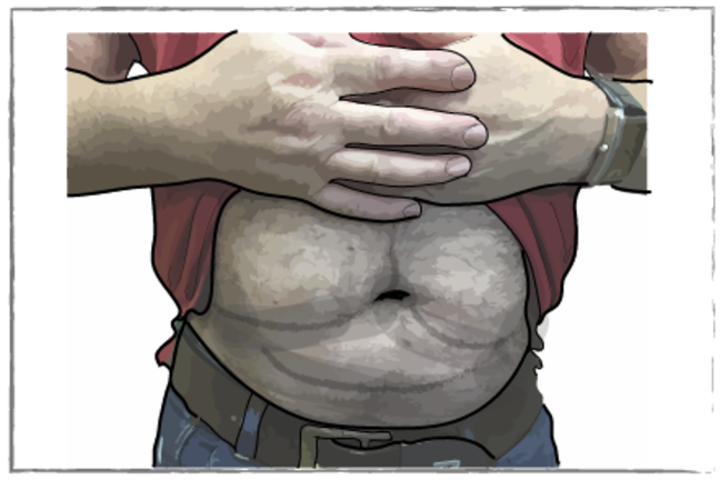 Man with exposed lumpy stomach area showing lipohypertrophy