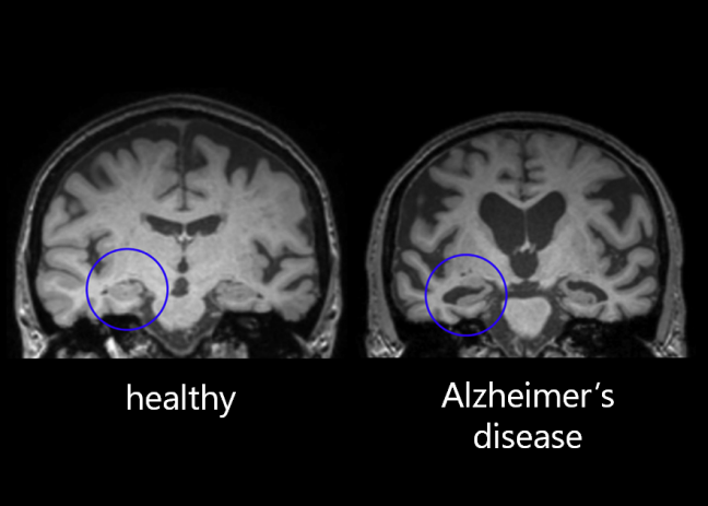 MRI scan of healthy brain compared with Alzheimer's patient