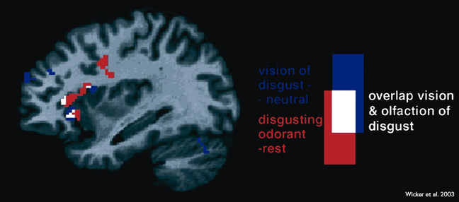fMRI sagittal section (a plane that splits the front of the face from top to bottom) showing overlapping areas of increased activity)