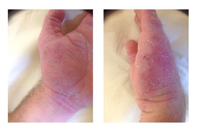 Examples of hand eczema_IMG_2854_IMG_2858.jpg