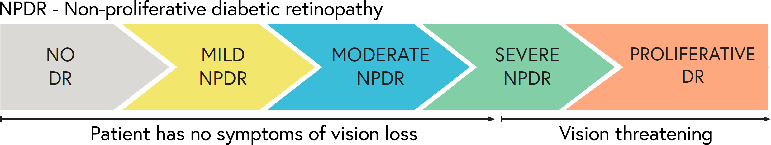 DR progresses through mild and moderate stages before becoming vision threatening in its severe and proliferative stages