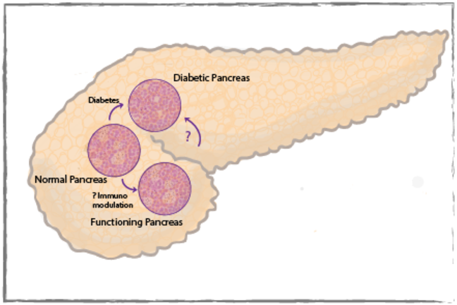The effect of diabetes on the pancreas