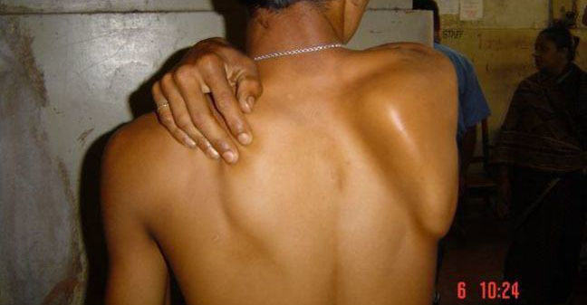 Winging of the scapula