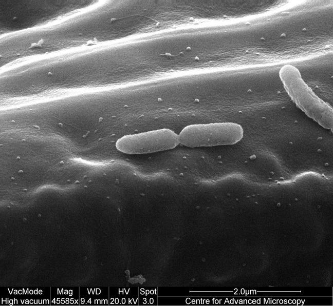 SEM image of rod-shaped Pseudomonas syringae